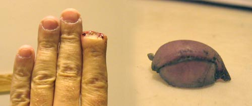 Severed Fingertip